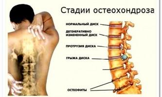 Подборка упражнений при остеохондрозе – здоровая спина и шея