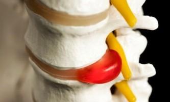 Профилактика появления и лечения межпозвоночных грыж