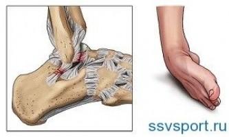 Растяжение связок голеностопа — лечение