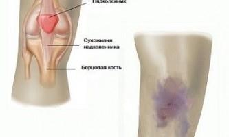 Ушиб колена при падении — лечение